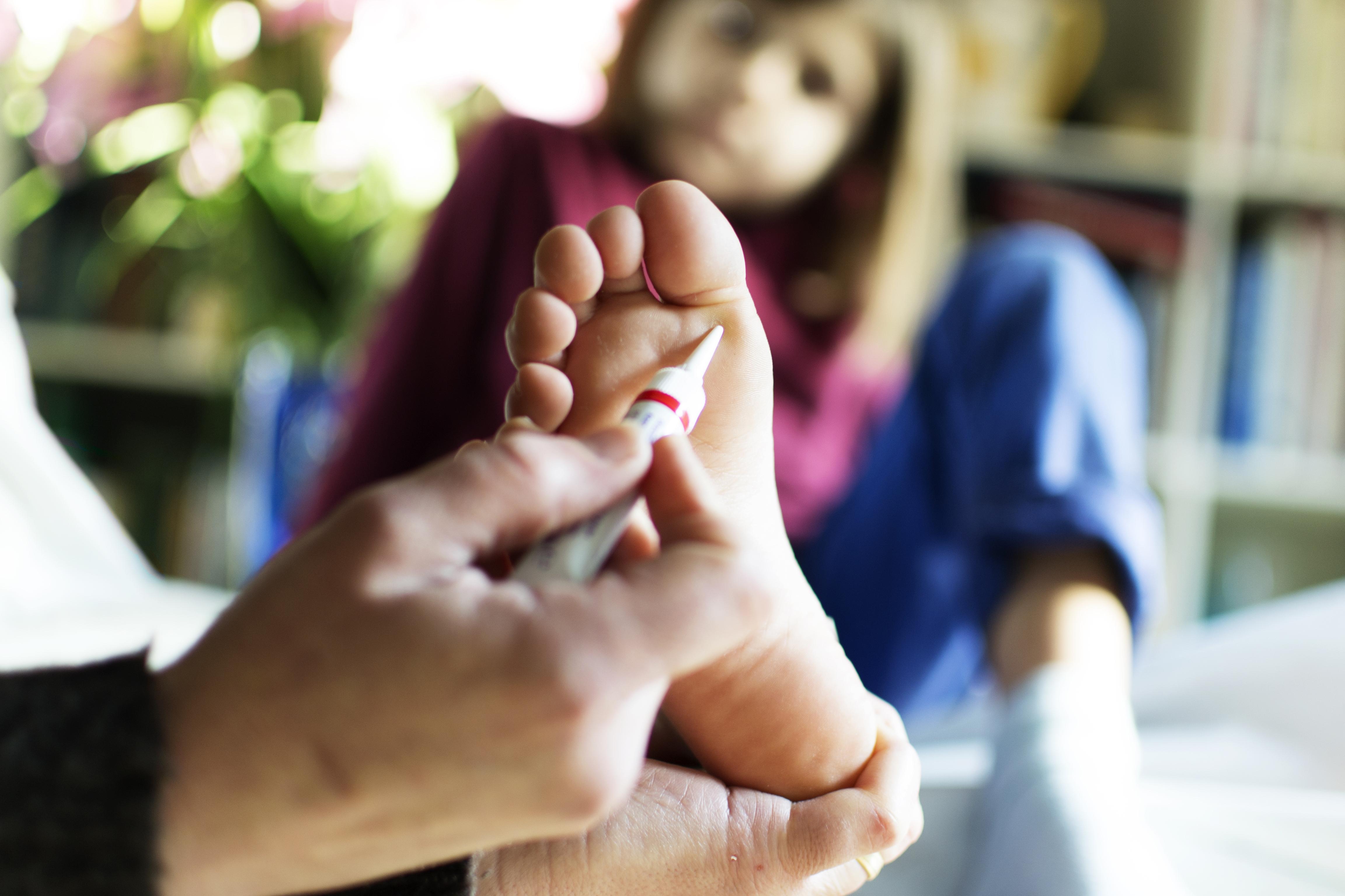 szemölcsök kezelése bőrgyógyász hpv bőrrel való érintkezés