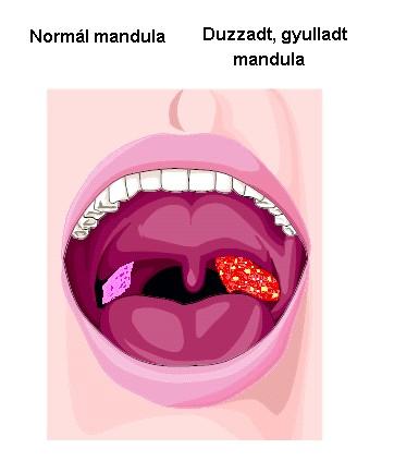 OPH - Melyek a HPV okozta torokrák árulkodó jelei? A papilloma tünetei a torokban